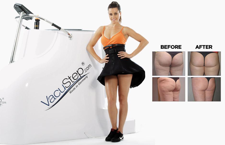 vacustep before